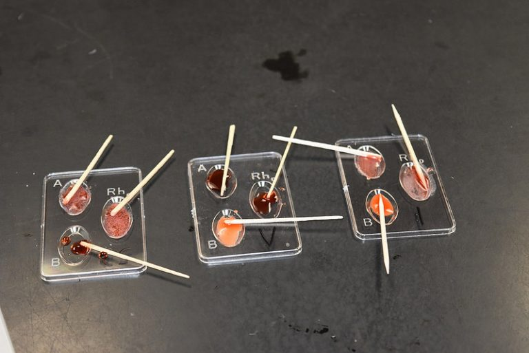 Students learn to identify different blood types in the Forensic Science three-week summer science program